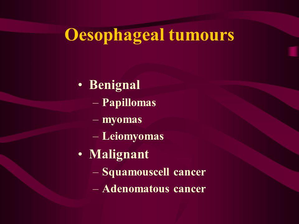 Oesophageal tumours Benignal –Papillomas –myomas –Leiomyomas Malignant –Squamouscell cancer –Adenomatous cancer