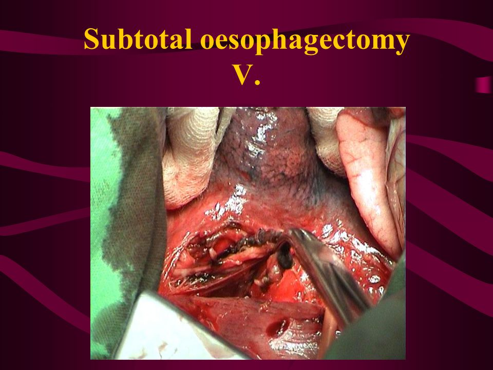 Subtotal oesophagectomy V.