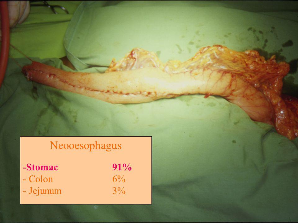 Neooesophagus -Stomac91% - Colon6% - Jejunum3%