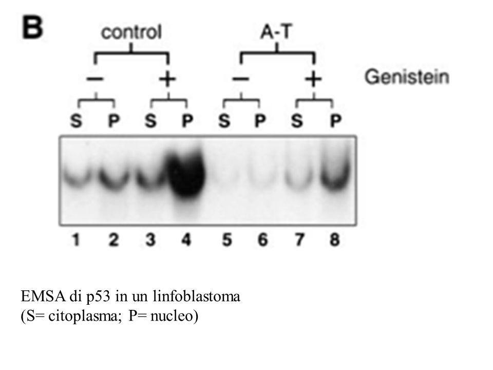 EMSA di p53 in un linfoblastoma (S= citoplasma; P= nucleo)