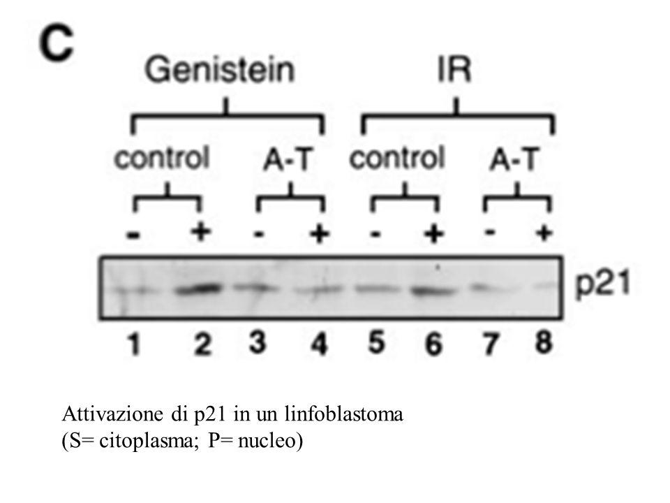 Attivazione di p21 in un linfoblastoma (S= citoplasma; P= nucleo)