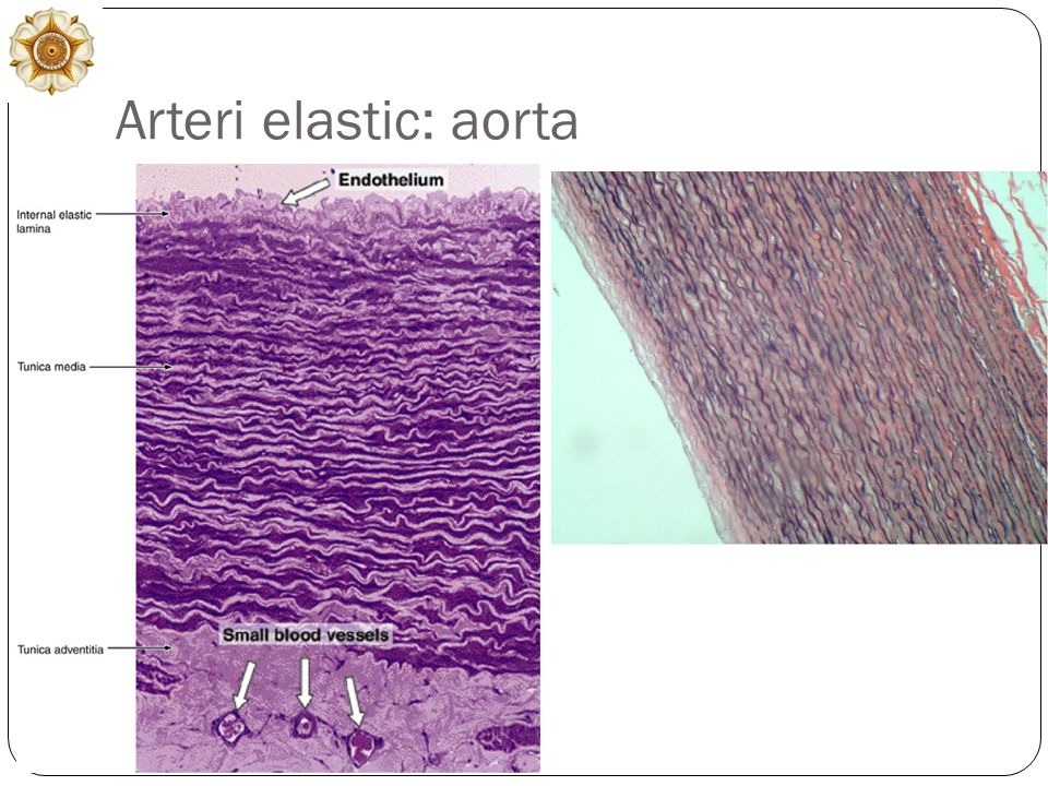 Arteri elastic: aorta
