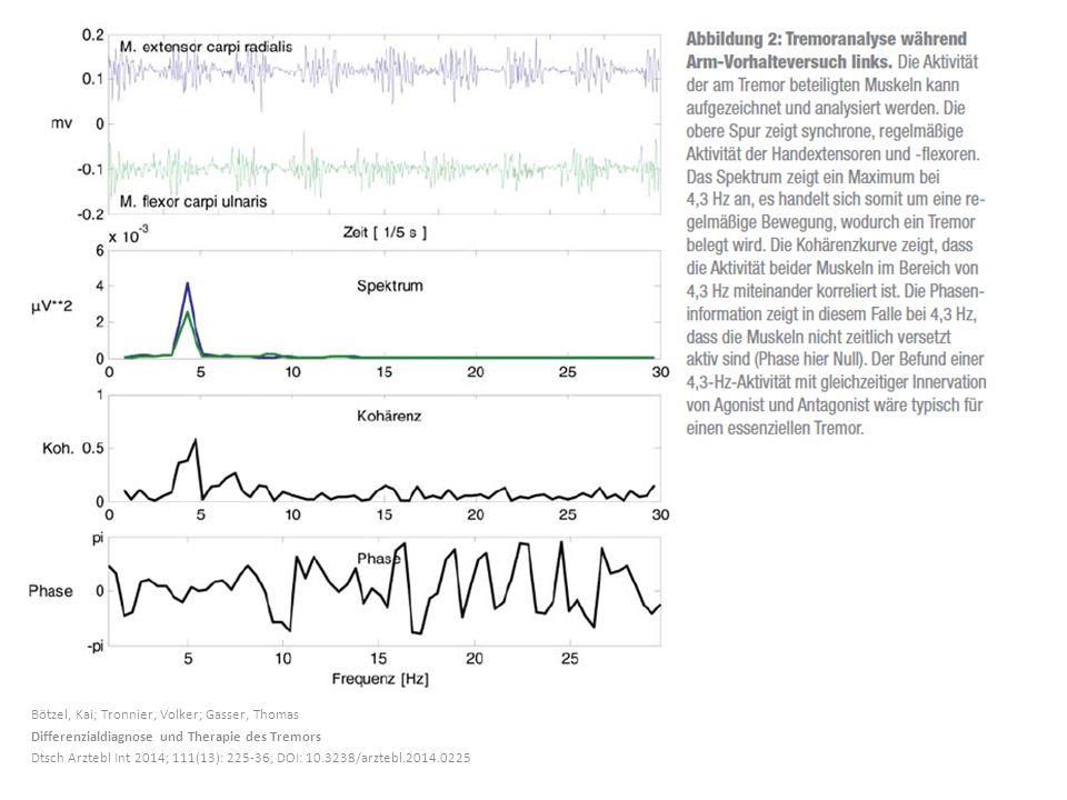 Bötzel, Kai; Tronnier, Volker; Gasser, Thomas Differenzialdiagnose und Therapie des Tremors Dtsch Arztebl Int 2014; 111(13): 225-36; DOI: 10.3238/arztebl.2014.0225