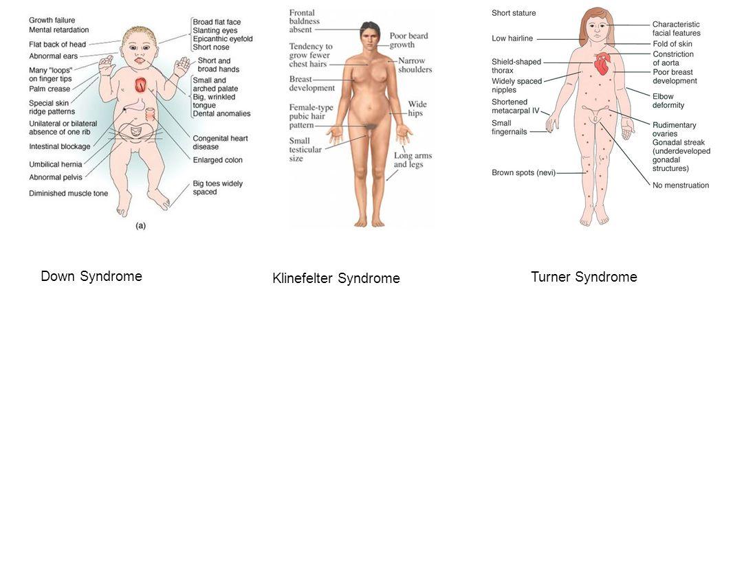 Down Syndrome Klinefelter Syndrome Turner Syndrome