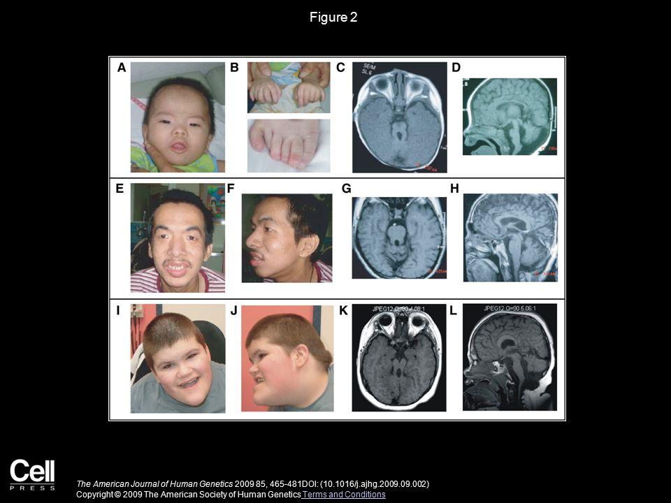 Figure 2 The American Journal of Human Genetics 2009 85, 465-481DOI: (10.1016/j.ajhg.2009.09.002) Copyright © 2009 The American Society of Human Genet