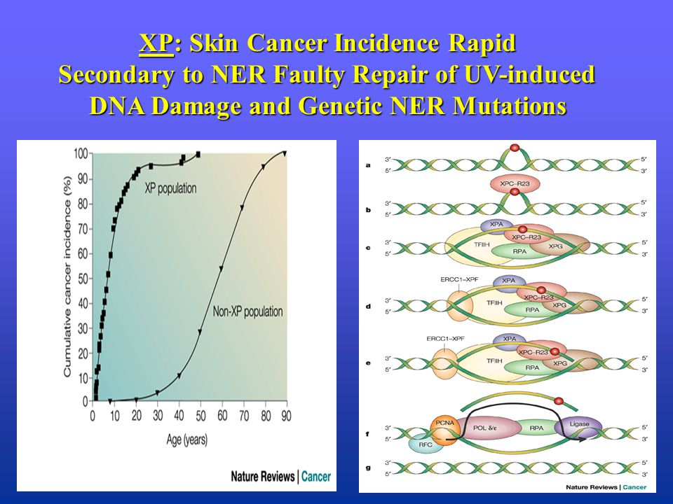 XP: Skin Cancer Incidence Rapid Secondary to NER Faulty Repair of UV-induced DNA Damage and Genetic NER Mutations