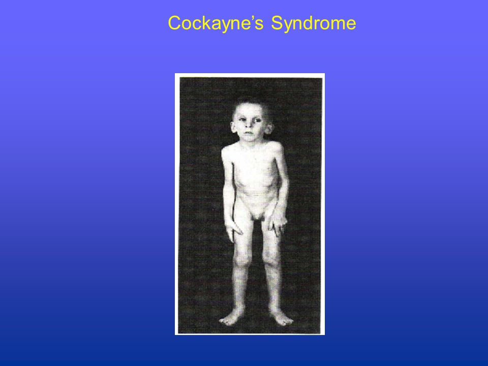 Cockayne's Syndrome