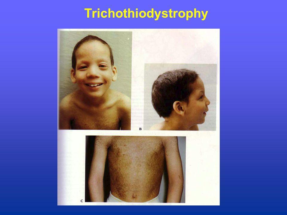 Trichothiodystrophy