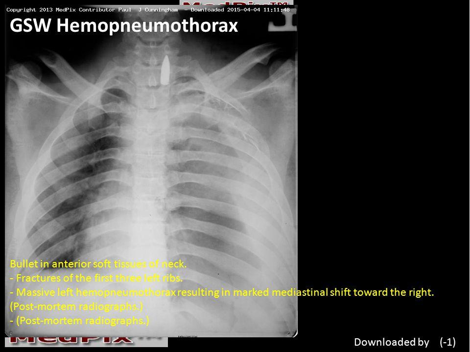 GSW Hemopneumothorax Bullet in anterior soft tissues of neck.