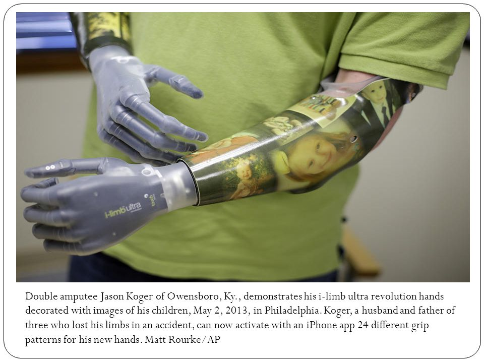 Double amputee Jason Koger of Owensboro, Ky., demonstrates his i-limb ultra revolution hands decorated with images of his children, May 2, 2013, in Philadelphia.