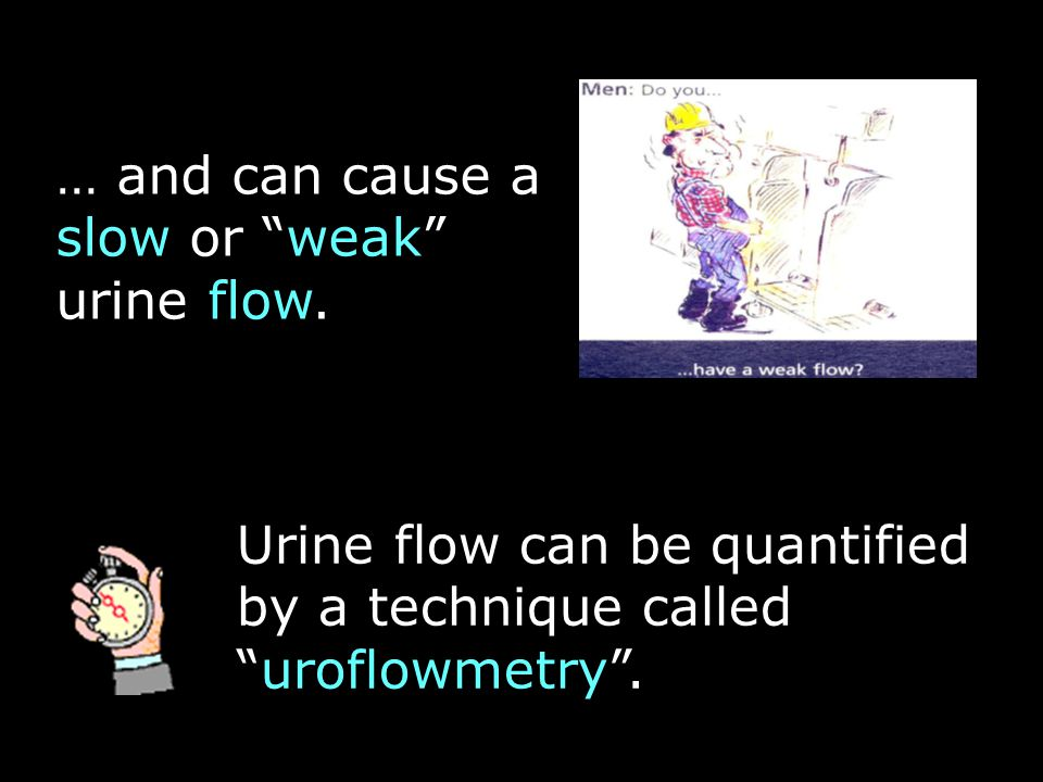 Uroflowmetry is performed in clinics, using expensive electronic flowmeters Attending a flow clinic can be a long and tedious experience…