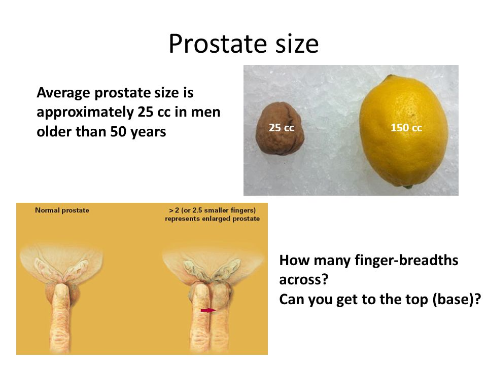Prostate size 25 cc150 cc Average prostate size is approximately 25 cc in men older than 50 years How many finger-breadths across.