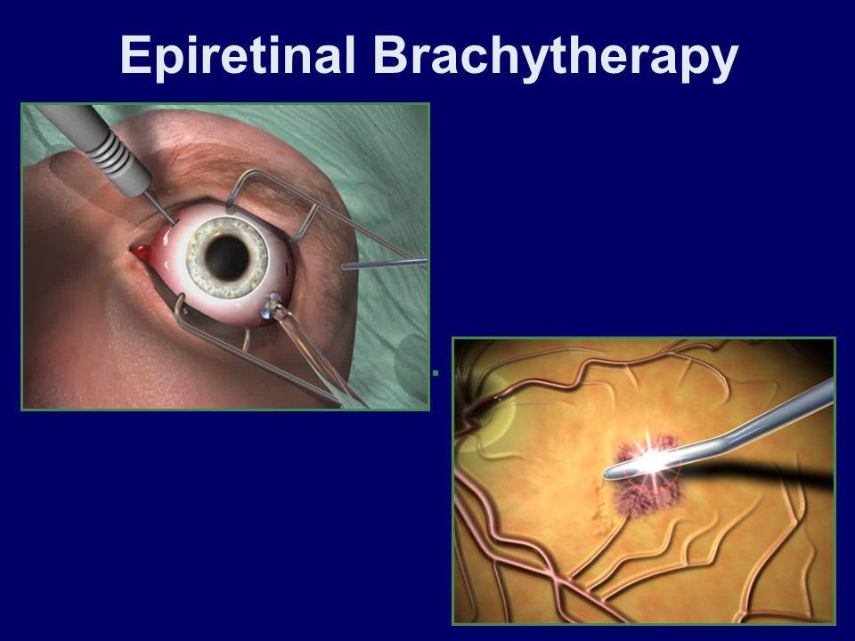 Epiretinal Brachytherapy
