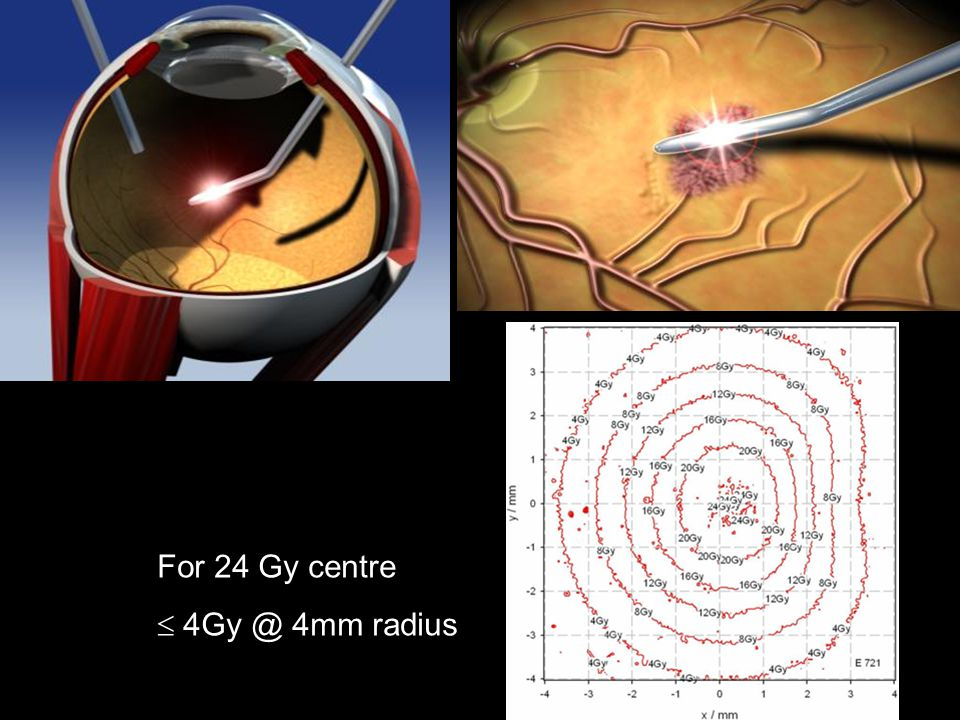 For 24 Gy centre  4Gy @ 4mm radius