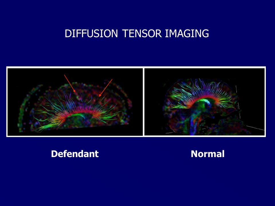 NormalDefendant DIFFUSION TENSOR IMAGING