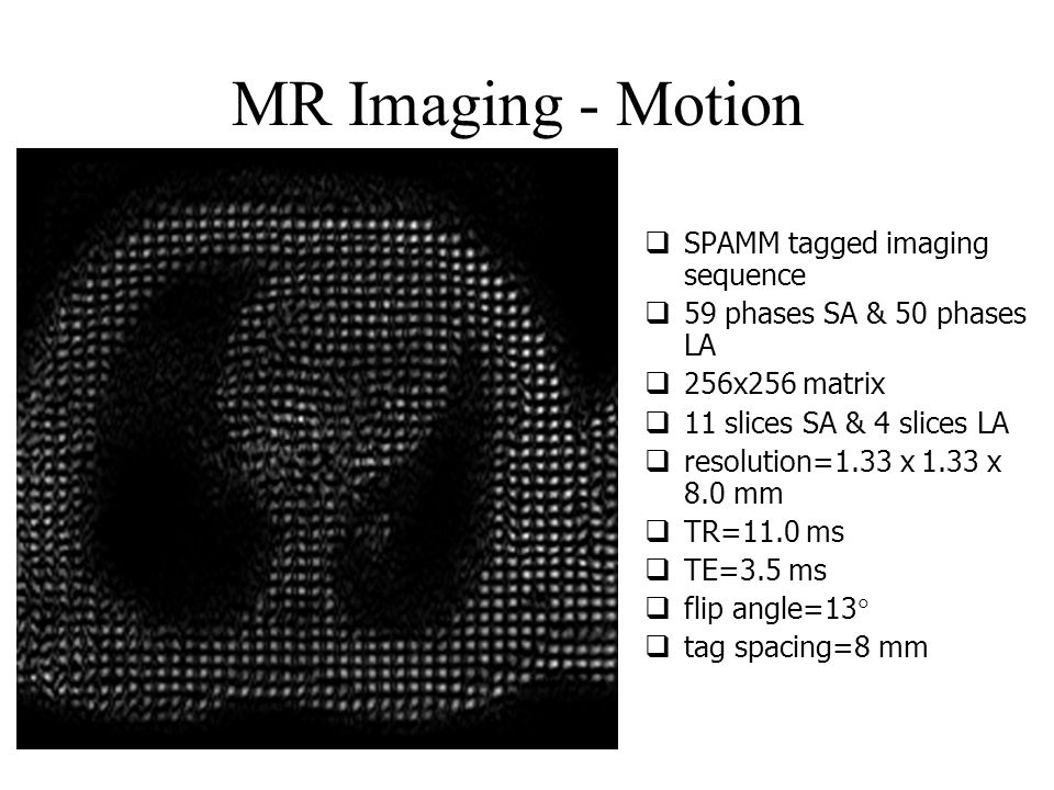MR Imaging - Motion  SPAMM tagged imaging sequence  59 phases SA & 50 phases LA  256x256 matrix  11 slices SA & 4 slices LA  resolution=1.33 x 1.33 x 8.0 mm  TR=11.0 ms  TE=3.5 ms  flip angle=13   tag spacing=8 mm