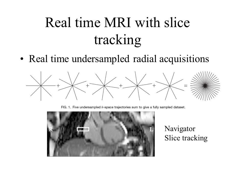 Real time MRI with slice tracking Real time undersampled radial acquisitions Navigator Slice tracking