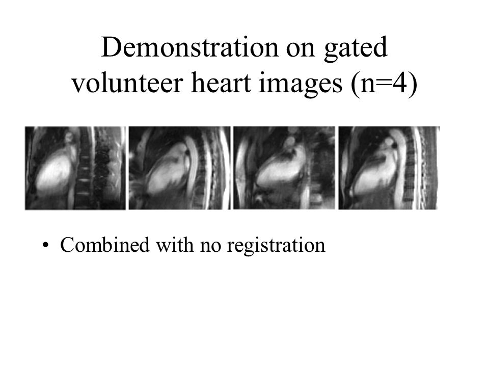 Demonstration on gated volunteer heart images (n=4) Combined with no registration