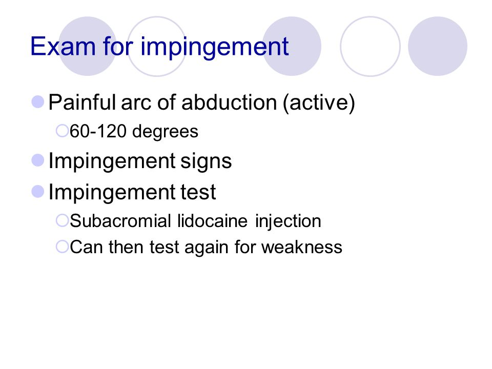 Exam for impingement Painful arc of abduction (active)  60-120 degrees Impingement signs Impingement test  Subacromial lidocaine injection  Can the