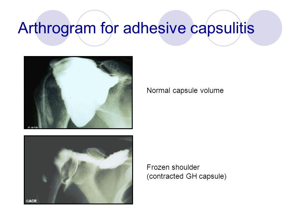 Arthrogram for adhesive capsulitis Normal capsule volume Frozen shoulder (contracted GH capsule)