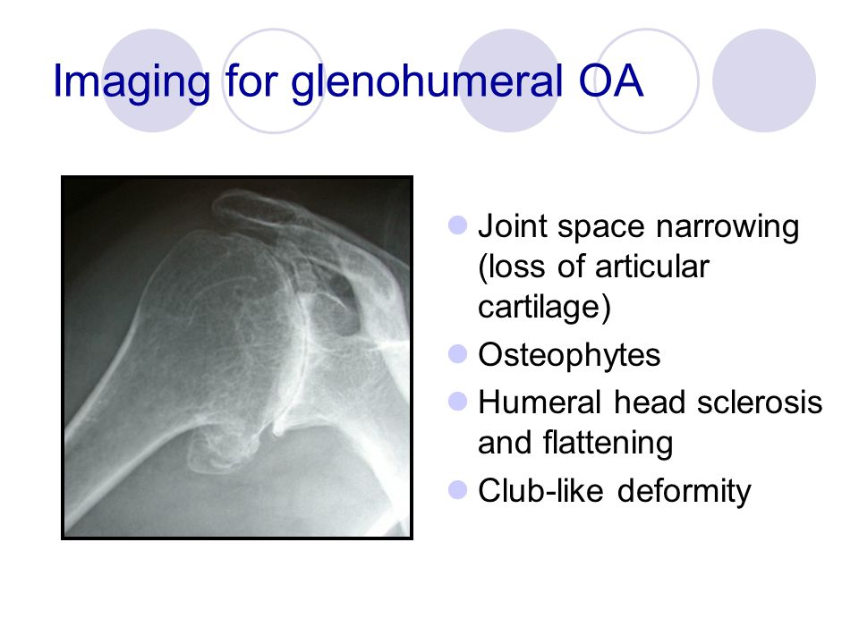 Imaging for glenohumeral OA Joint space narrowing (loss of articular cartilage) Osteophytes Humeral head sclerosis and flattening Club-like deformity