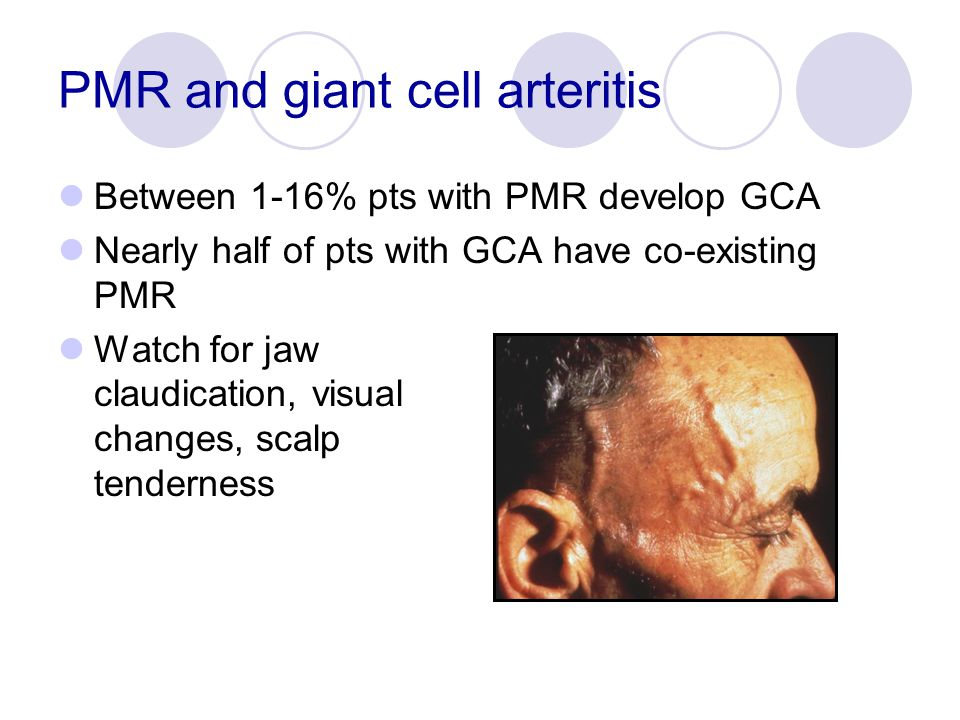 PMR and giant cell arteritis Between 1-16% pts with PMR develop GCA Nearly half of pts with GCA have co-existing PMR Watch for jaw claudication, visua
