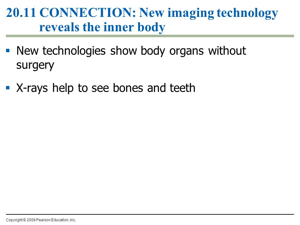 20.11 CONNECTION: New imaging technology reveals the inner body  New technologies show body organs without surgery  X-rays help to see bones and tee