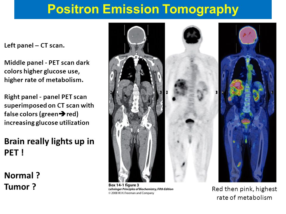 Positron Emission Tomography Left panel – CT scan.
