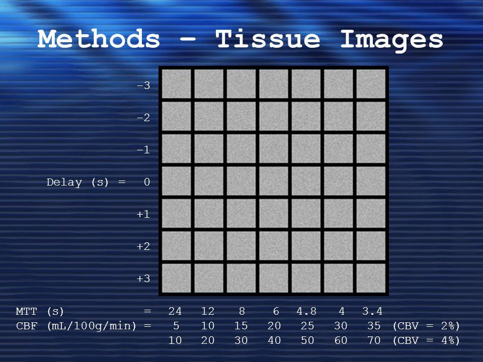 Methods – Tissue Images -3 -2 Delay (s) = 0 +1 +2 +3 MTT (s) =2412864.843.4 CBF (mL/100g/min)=5101520253035(CBV = 2%) 10203040506070(CBV = 4%)