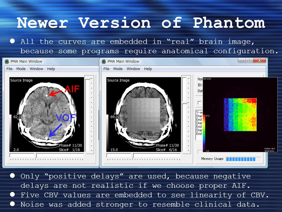 Newer Version of Phantom All the curves are embedded in real brain image, because some programs require anatomical configuration.