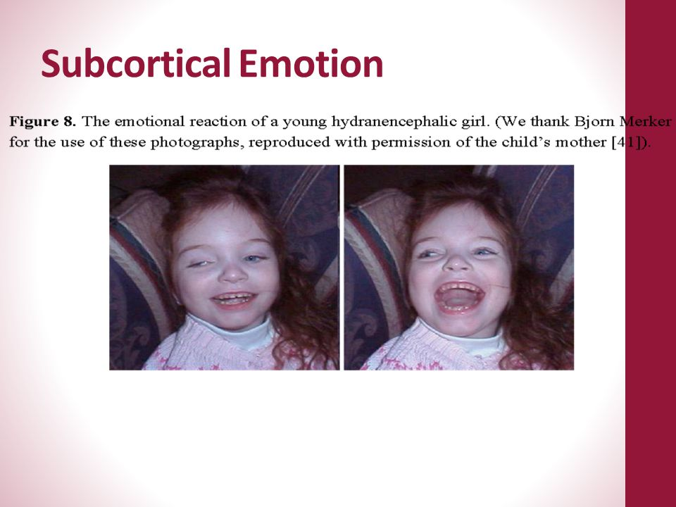 Subcortical Emotion