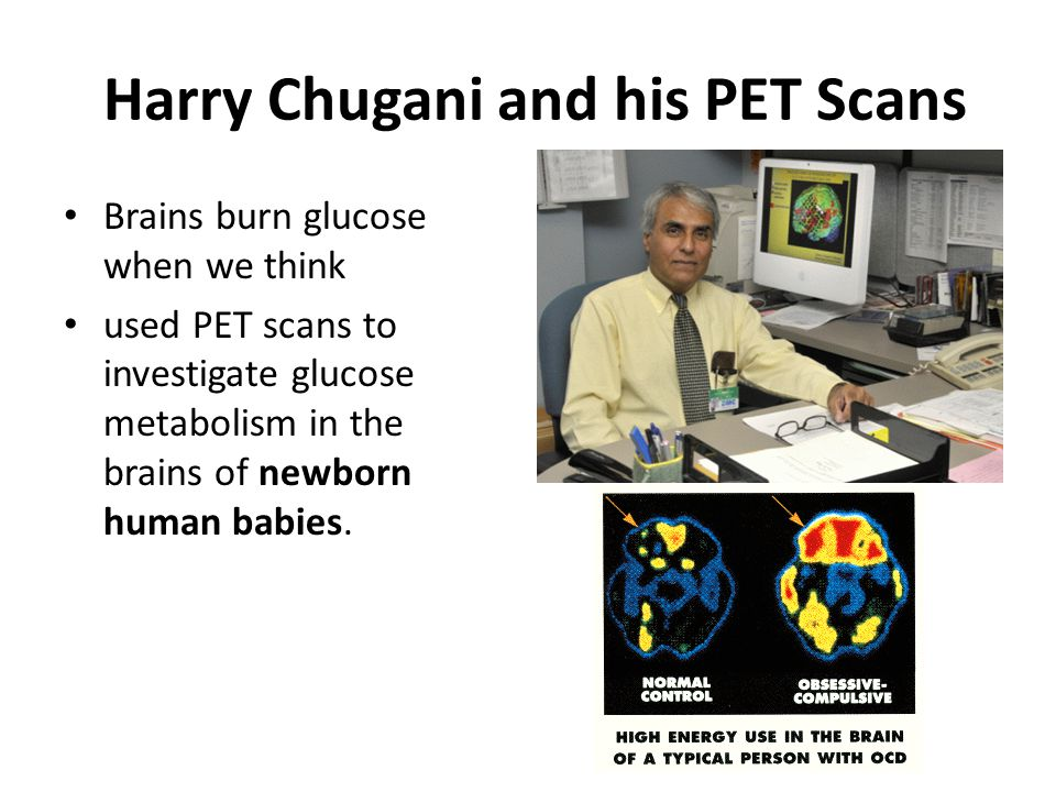 Harry Chugani and his PET Scans Brains burn glucose when we think used PET scans to investigate glucose metabolism in the brains of newborn human babi