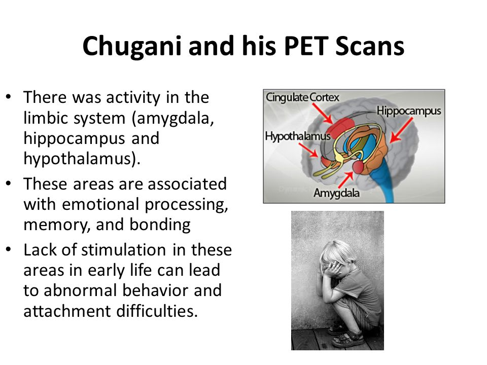 Chugani and his PET Scans There was activity in the limbic system (amygdala, hippocampus and hypothalamus). These areas are associated with emotional