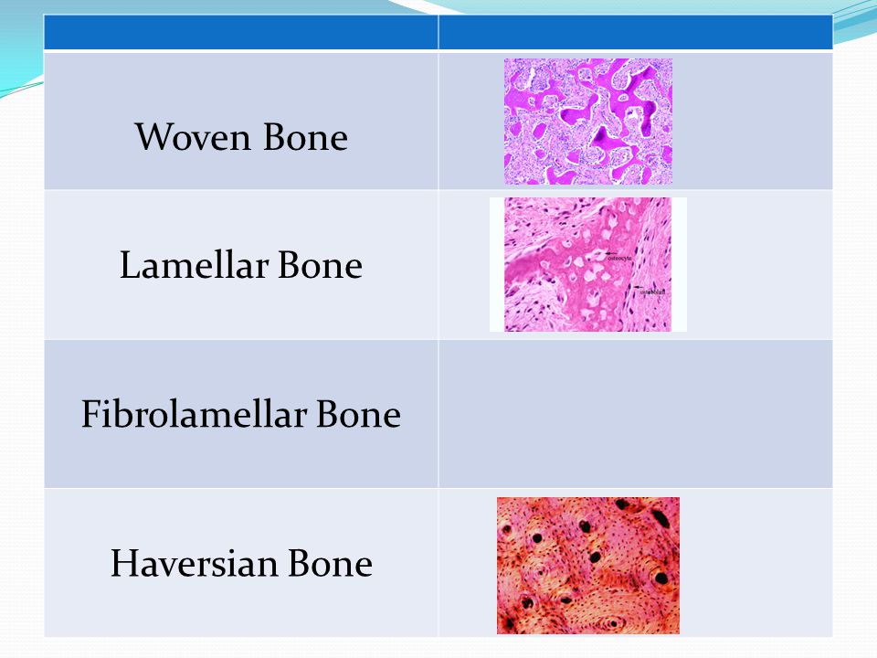 Woven Bone Lamellar Bone Fibrolamellar Bone Haversian Bone