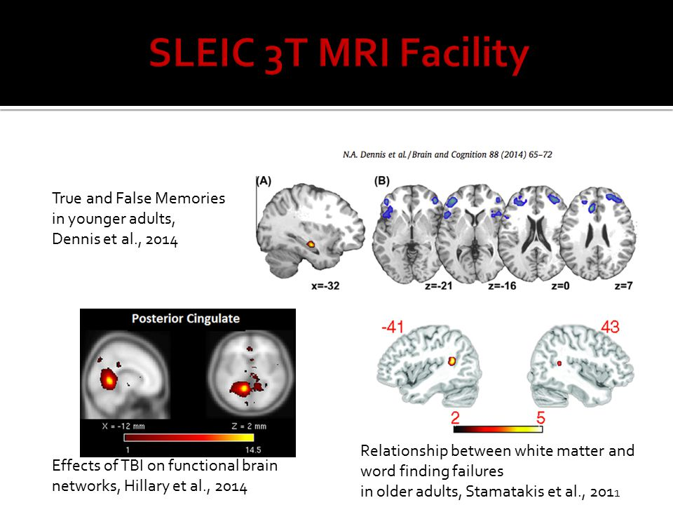 True and False Memories in younger adults, Dennis et al., 2014 Effects of TBI on functional brain networks, Hillary et al., 2014 Relationship between white matter and word finding failures in older adults, Stamatakis et al., 201 1