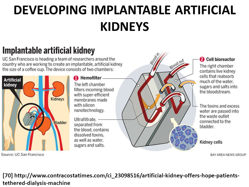 [70] http://www.contracostatimes.com/ci_23098516/artificial-kidney-offers-hope-patients- tethered-dialysis-machine DEVELOPING IMPLANTABLE ARTIFICIAL KIDNEYS