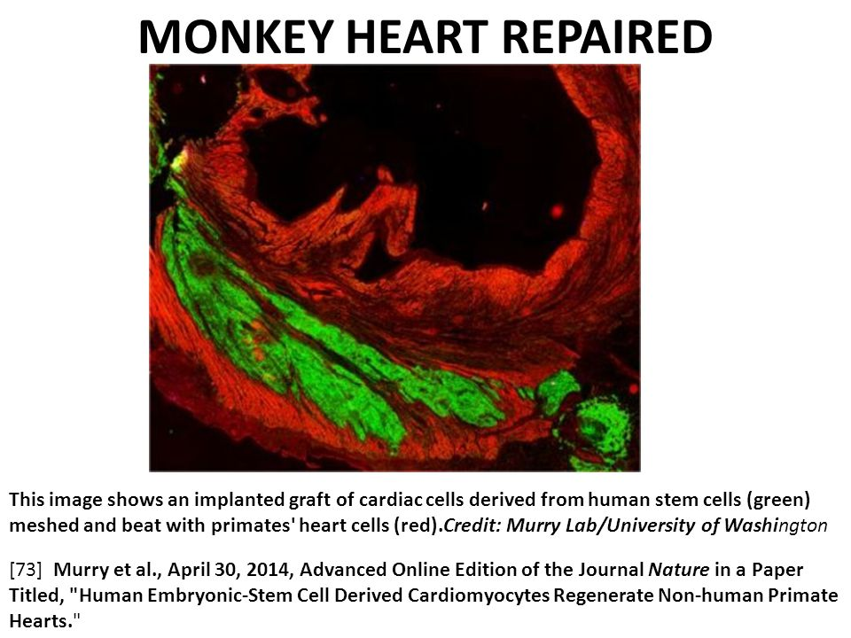 This image shows an implanted graft of cardiac cells derived from human stem cells (green) meshed and beat with primates heart cells (red).Credit: Murry Lab/University of Washington MONKEY HEART REPAIRED [73] Murry et al., April 30, 2014, Advanced Online Edition of the Journal Nature in a Paper Titled, Human Embryonic-Stem Cell Derived Cardiomyocytes Regenerate Non-human Primate Hearts.