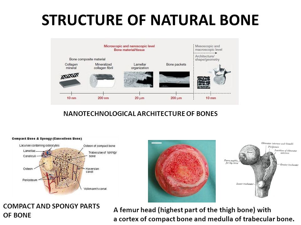 STRUCTURE OF NATURAL BONE NANOTECHNOLOGICAL ARCHITECTURE OF BONES COMPACT AND SPONGY PARTS OF BONE A femur head (highest part of the thigh bone) with a cortex of compact bone and medulla of trabecular bone.
