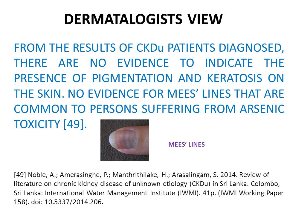 DERMATALOGISTS VIEW FROM THE RESULTS OF CKDu PATIENTS DIAGNOSED, THERE ARE NO EVIDENCE TO INDICATE THE PRESENCE OF PIGMENTATION AND KERATOSIS ON THE SKIN.