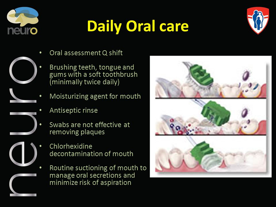 Daily Oral care Oral assessment Q shift Brushing teeth, tongue and gums with a soft toothbrush (minimally twice daily) Moisturizing agent for mouth An