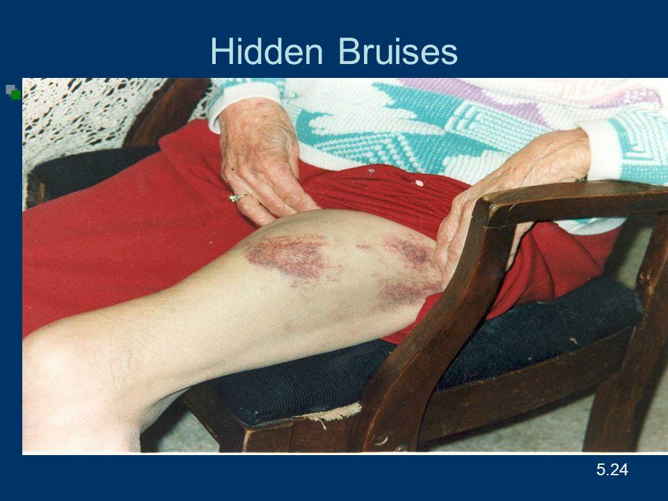 5.24 Hidden Bruises