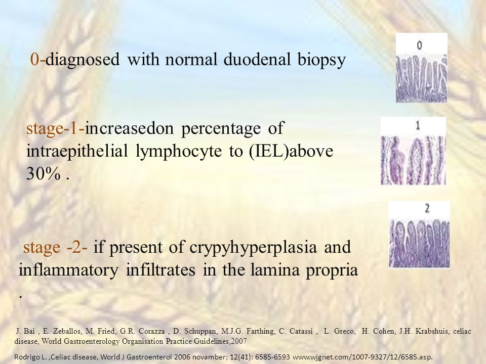 stage -2- if present of crypyhyperplasia and inflammatory infiltrates in the lamina propria.