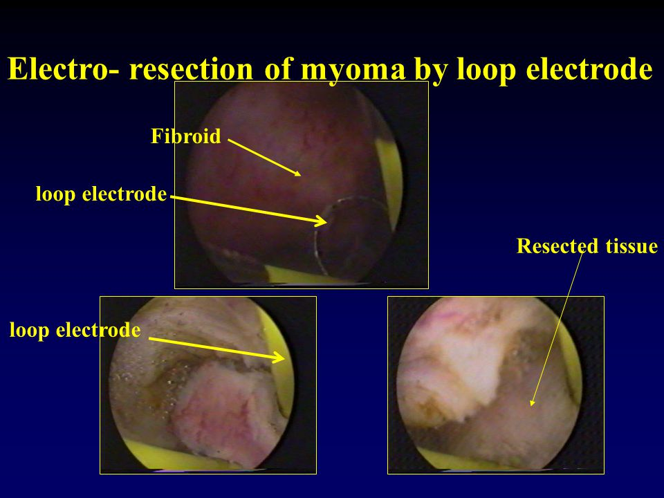 Electro- resection of myoma by loop electrode loop electrode Fibroid Resected tissue