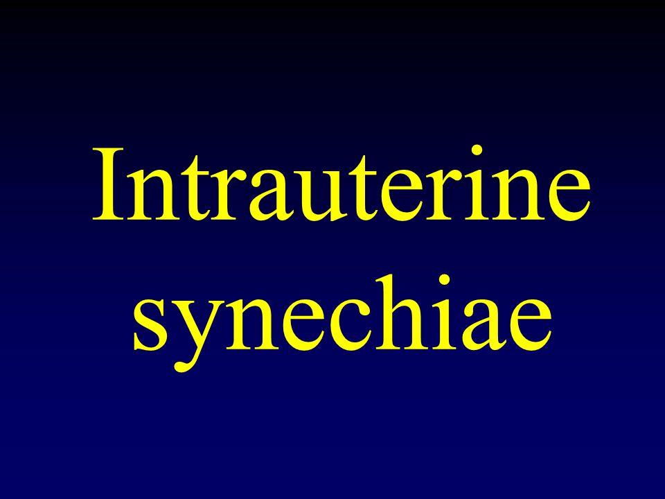 Intrauterine synechiae