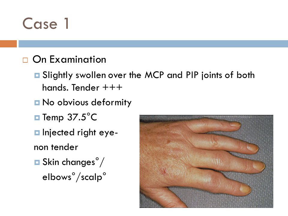Case 1  On Examination  Slightly swollen over the MCP and PIP joints of both hands. Tender +++  No obvious deformity  Temp 37.5°C  Injected right