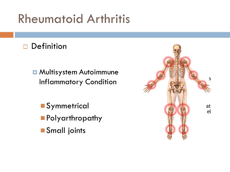 Rheumatoid Arthritis  Definition  Multisystem Autoimmune Inflammatory Condition Symmetrical Polyarthropathy Small joints