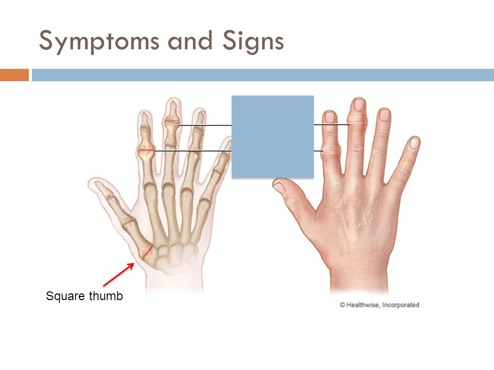 Symptoms and Signs Square thumb