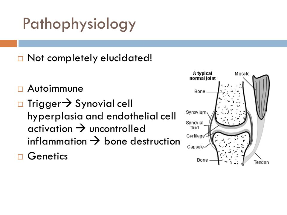 Pathophysiology  Not completely elucidated!  Autoimmune  Trigger  Synovial cell hyperplasia and endothelial cell activation  uncontrolled inflamm