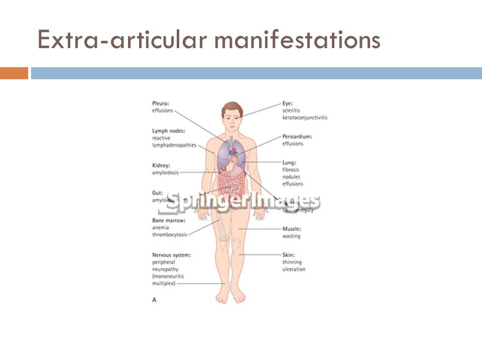 Extra-articular manifestations