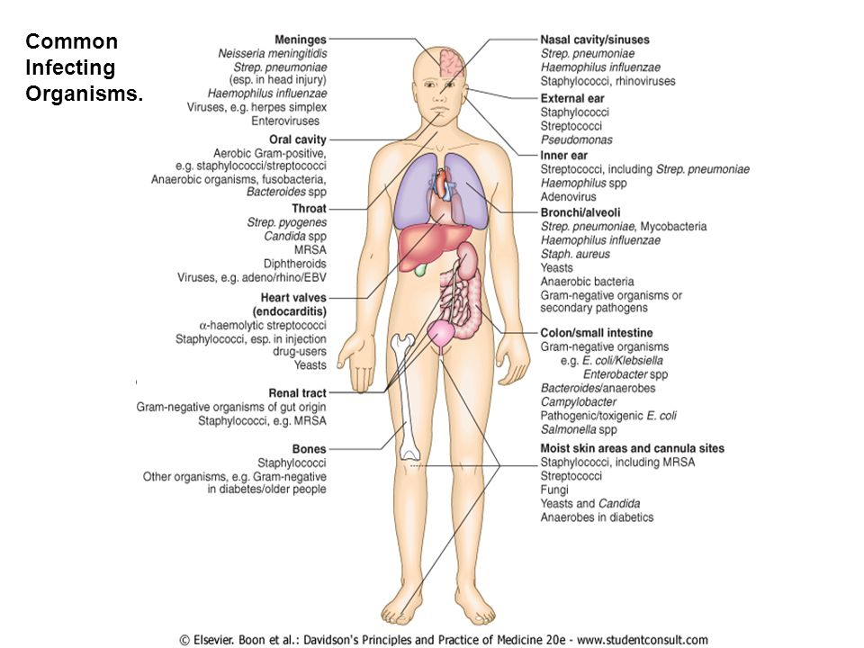 Selection of Antibiotics Identification of Infecting organism